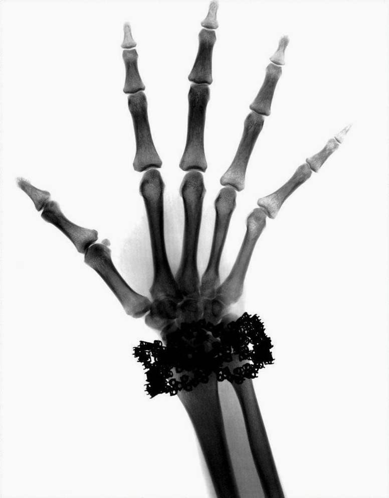 Van Cleef & Arpels Diamond Bracelet X-Ray